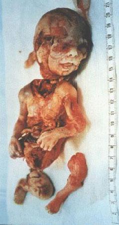 Enfant avorte démembré