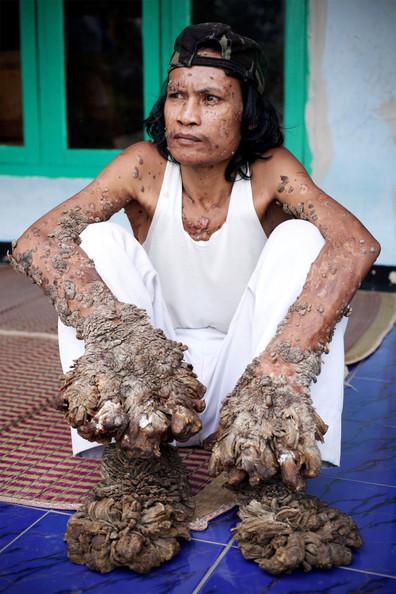 Indonésien victime du Human Papilloma Virus (HPV)